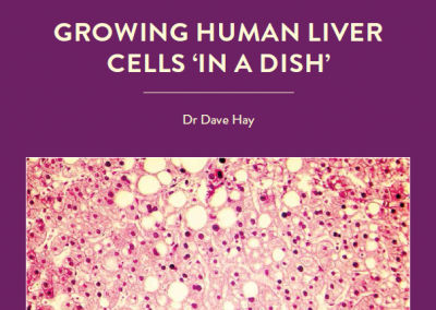 Full liver transplants are the main treatment option for severe liver disease, but suitable donors are in short supply. Could stem cell technology, in which healthy liver […]